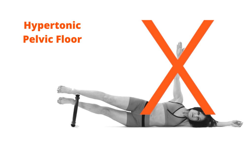 Hypertonic Pelvic Floor